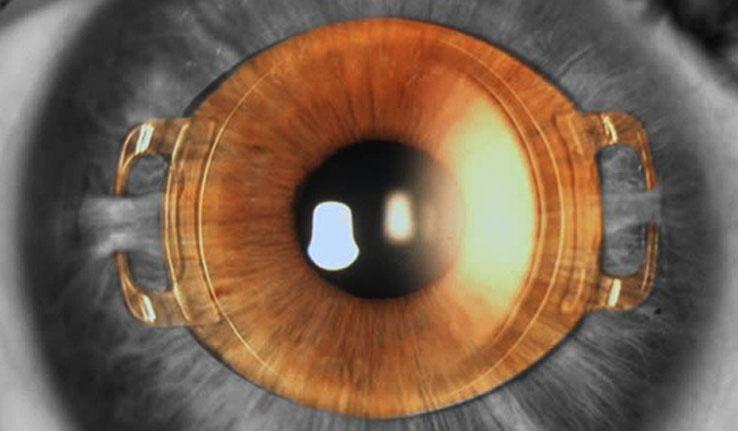 알티산렌즈가 삽입된 모습